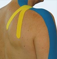 Mann mit Taping auf dem Schulter